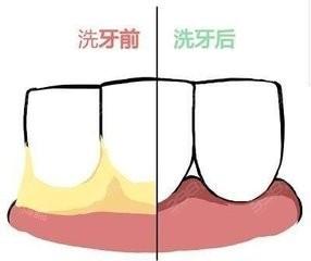 洗牙会使牙缝变大吗