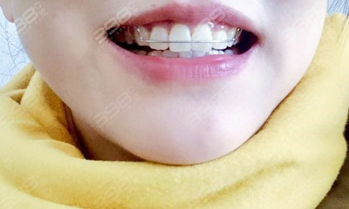 牙齿矫正保持器戴多长时间?吃饭要拿掉吗?多久换一次?