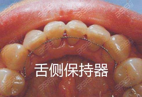 牙齿矫正保持器-舌侧保持器
