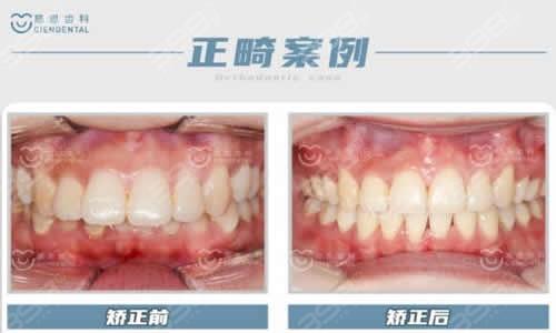 慈恩齿科牙齿矫正案例