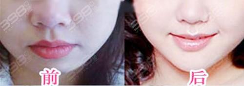 箍牙后嘴唇会变薄吗?