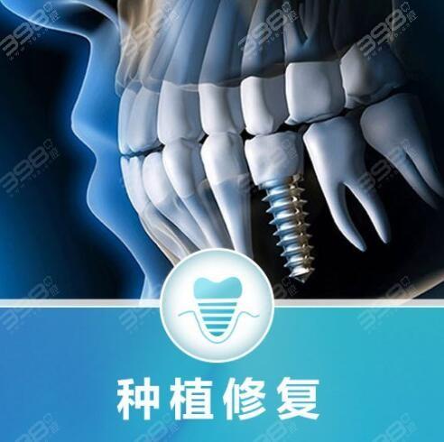 深圳格伦菲尔口腔是正规的医院吗?种植牙靠谱吗?费用贵不贵?