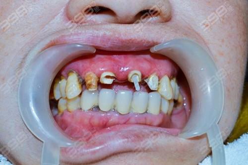 牙冠戴10年了里面的牙怎么样了?牙龈萎缩怎么办?