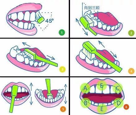 牙医不建议用电动牙刷的原因