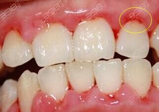 牙周炎危害