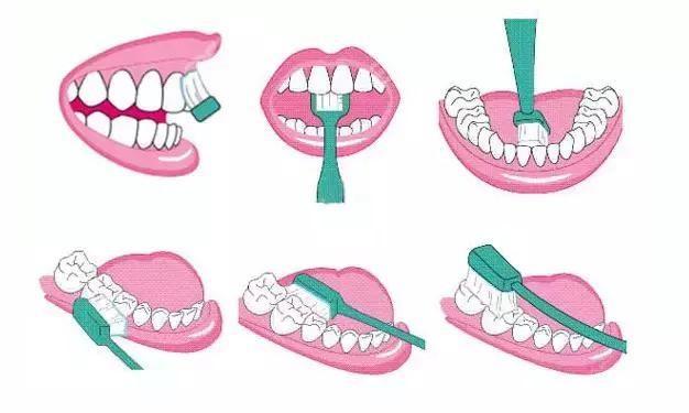 如何保持口腔健康