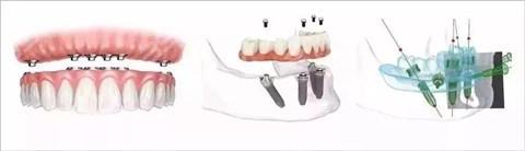 种植牙活动