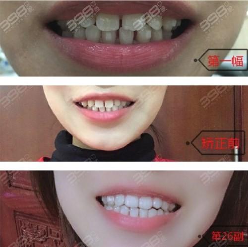 牙齿稀疏隐适美矫正案例