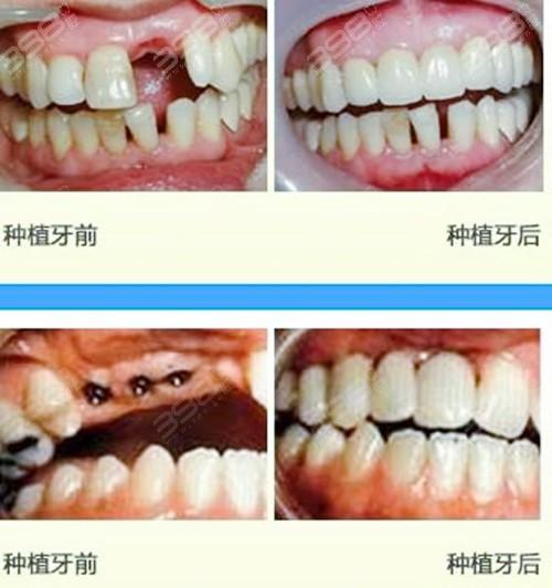洛阳种植牙好的医院是哪家?正规医院种植牙收费标准有吗?