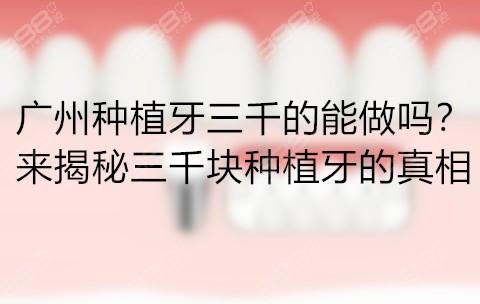 广州种植牙三千的能做吗?来揭秘三千块种植牙的真相