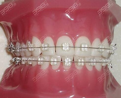 陶瓷自锁牙套