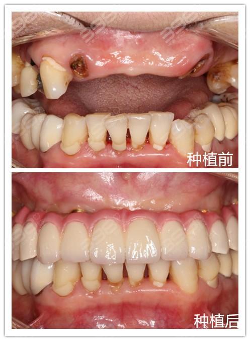曾小法种植牙案例