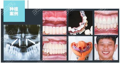 珠海all-on-4种植牙案例