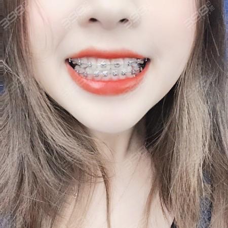 金属自锁牙齿矫正案例
