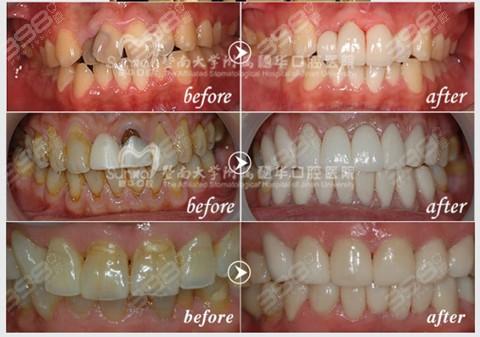 马医生牙齿修复案例