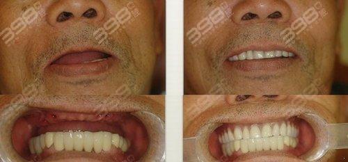 半口种植牙案例