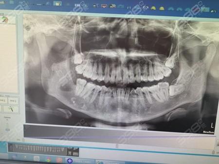 智齿ct片