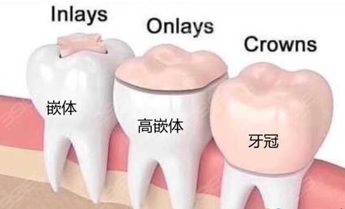 嵌体补牙和带牙冠哪个贵?