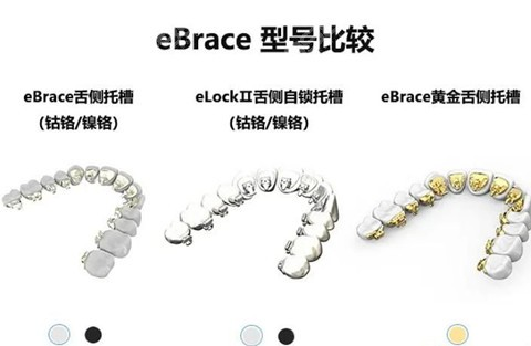 国产ebrace的舌侧矫正器型号