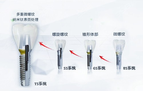 韩国三大种植牙品牌:奥齿泰Osstem种植体