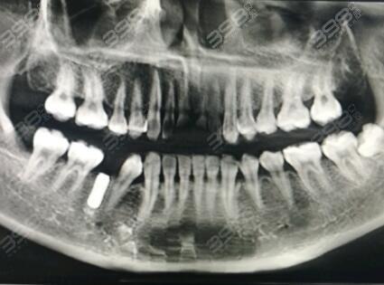 韩国种植牙质量怎么样?这三大种植牙品牌告诉你韩国种植牙好吗