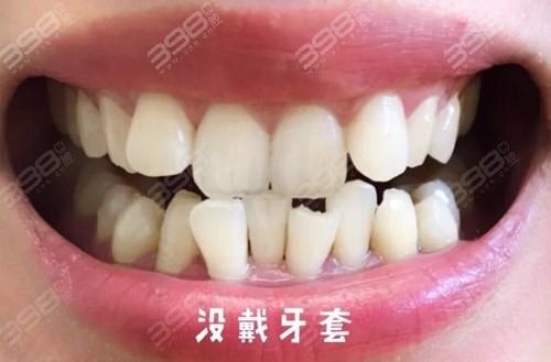 成年以后千万别整牙