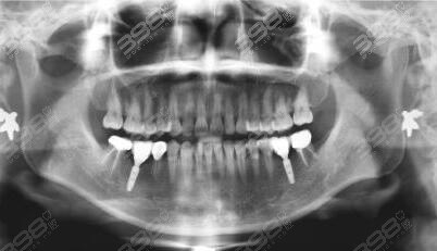 徐州美奥口腔种植牙案例