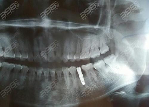 韩国登腾种植牙使用者的感受