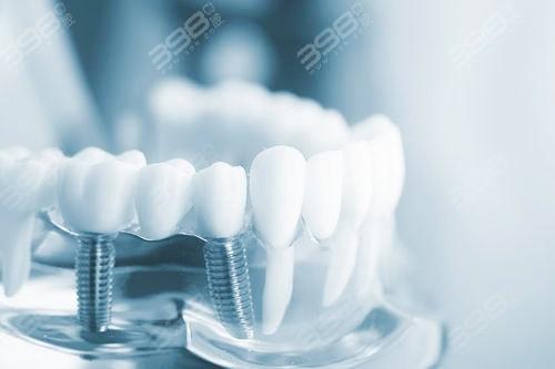 韩国种植牙与瑞士iti哪个寿命长?听听种植牙使用者的感受