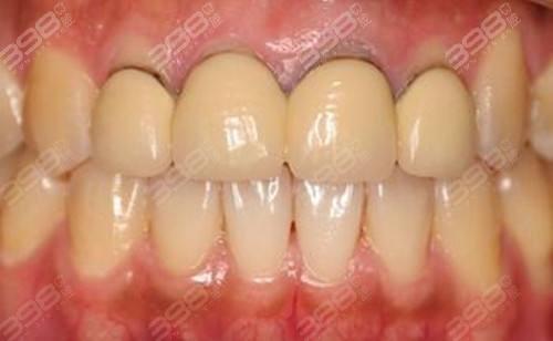 烤瓷牙牙龈出现黑线