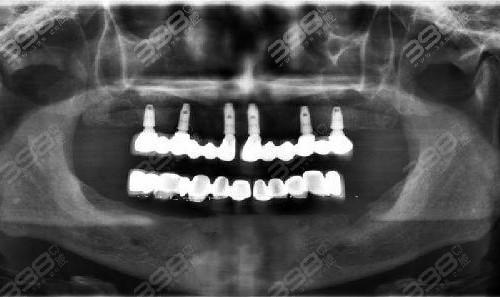 all-on-6半口种植牙案例