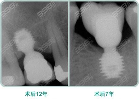 上海地区2021种植牙收费价目表参考