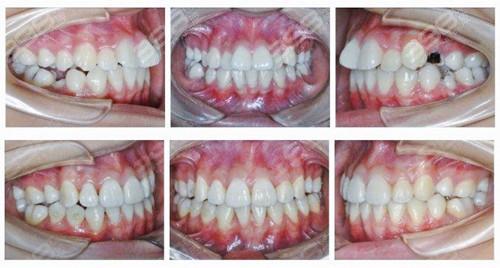 北京贝齐口腔门诊部牙齿矫正