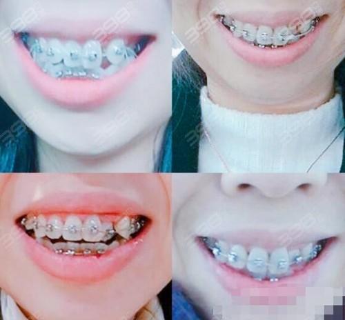 合肥壹加壹口腔牙齿矫正