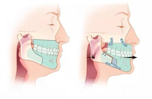 正颌手术前一定要正畸吗?