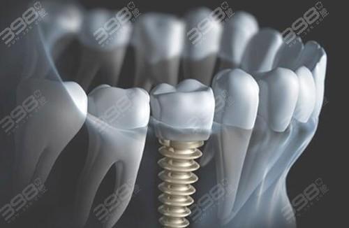 长沙牙科哪里做的又好又便宜?求正规医院种植牙收费标准
