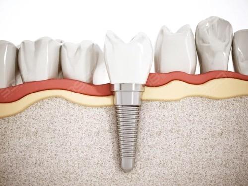 种牙时别被牙医忽悠了!这些人根本不适合做种植牙手术!