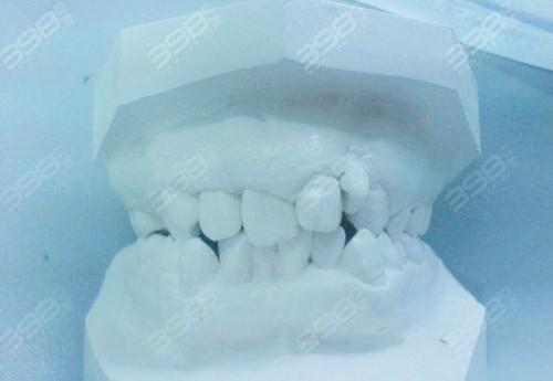 种牙时别被牙医忽悠了