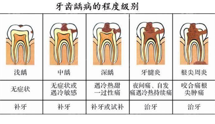 牙齿龋坏过程