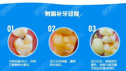 3m树脂补牙和普通树脂的区别:价格,颜色,使用寿命都不一样