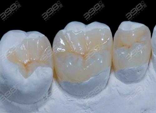 3m树脂补牙和普通树脂的区别
