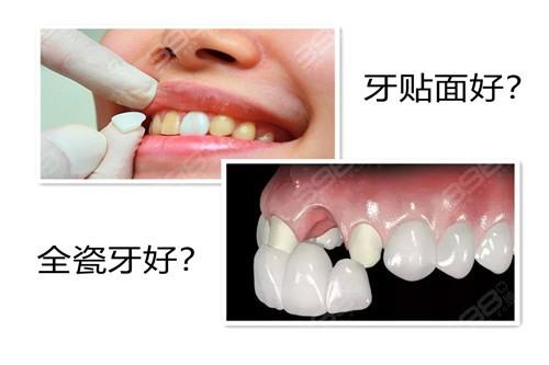 牙贴面好还是全瓷牙好?