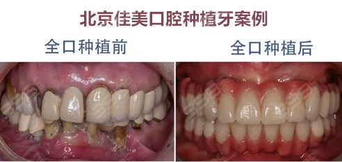 北京朝阳区口腔医院排名-佳美口腔