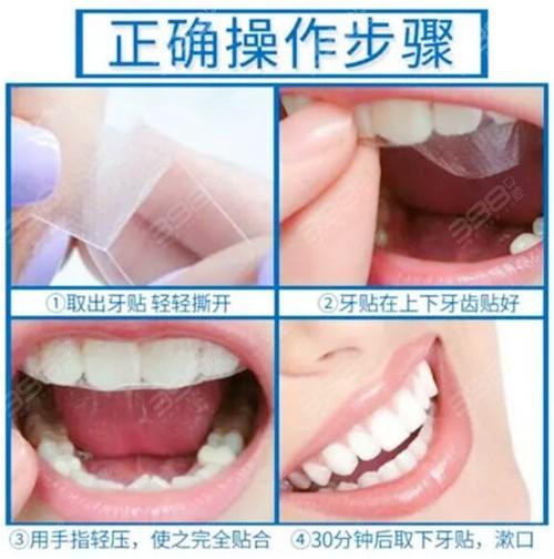 美牙贴的正确使用方法