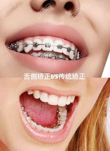 舌侧矫正和传统矫正哪个好