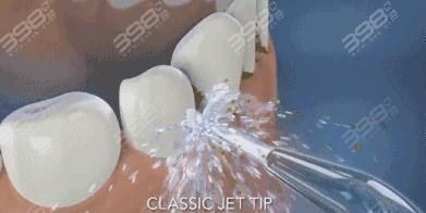 水牙线的好处