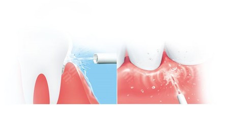冲牙器原理是什么