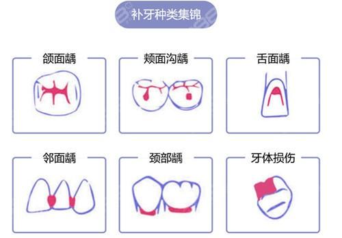 广州牙科医院补牙多少钱一颗