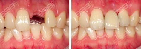 大门牙种植牙要多少钱?口腔医院种植牙价格明细是这样的