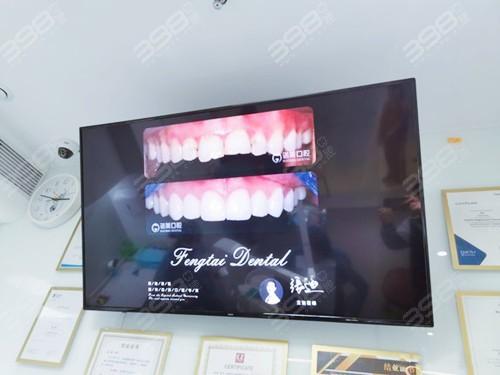 北京诺美口腔牙齿矫正怎么样